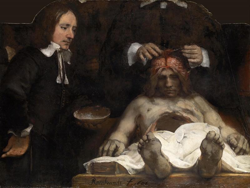 Урок анатомии доктора Деймана. Рембрандт Харменс ван Рейн